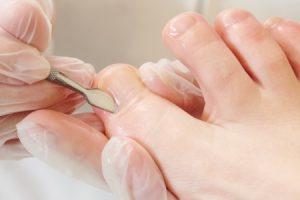 Onicectomía (uñas encarnadas)