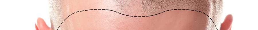 Consulta por alopecia